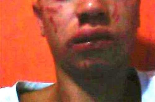 Espancamento de jovem em Povoação: vítima foi agredida por motivos de ciúmes