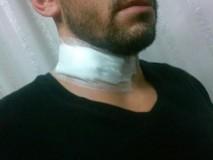 Motociclista tem pescoço cortado por linha de cerol no Novo Horizonte